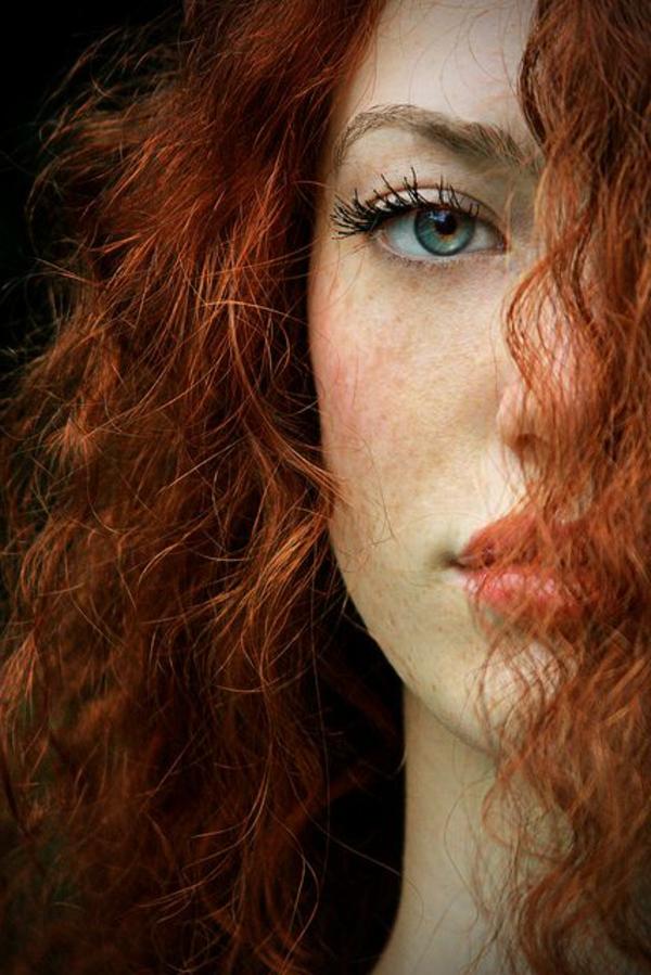 Les taches de pigment sur la personne la raison de leur apparition