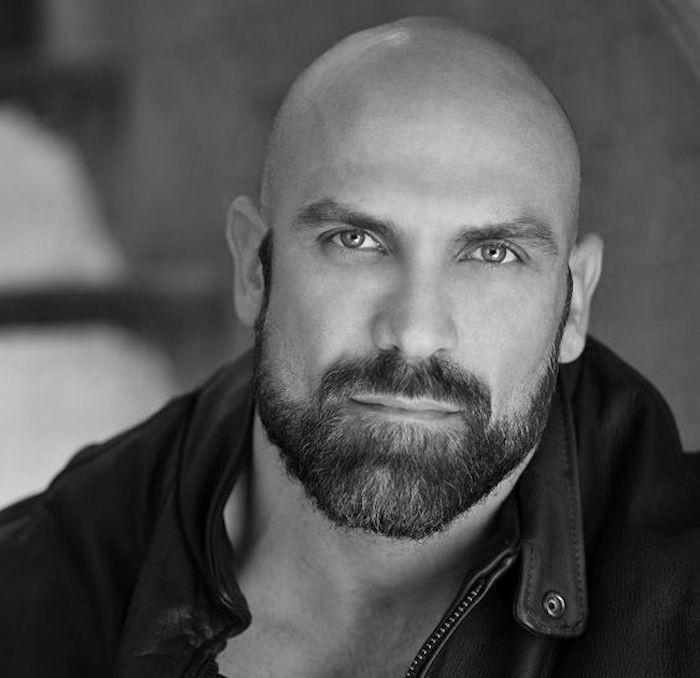 alopecie-androgenetique-calvitie-precoce-pelade-homme-chauve-barbe