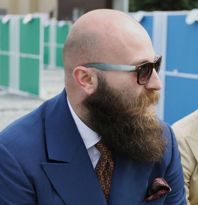 alopecie-homme-chauve-calvitie-et-barbe-chute-des-cheveux