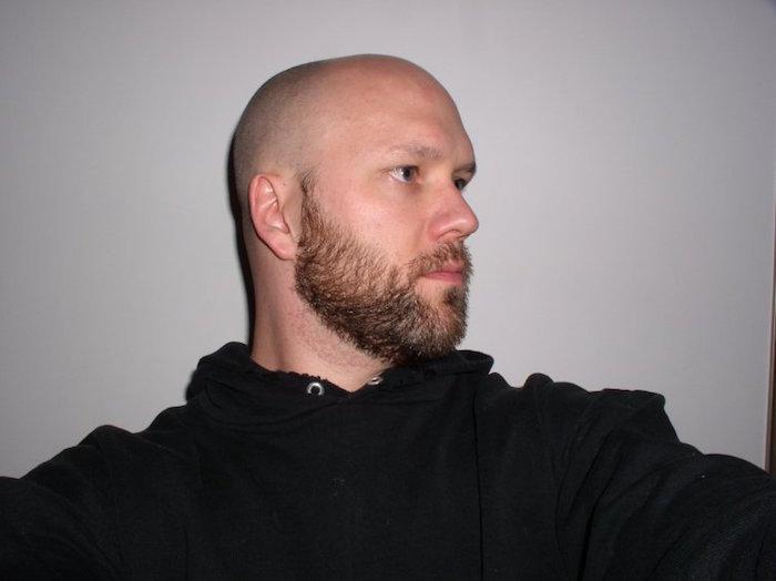 chauve barbu avec calvitie précoce chute des cheveux