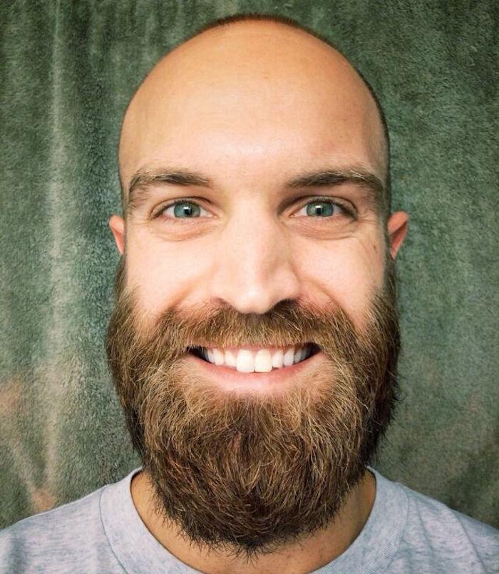 chauve-barbu-homme-calvitie-precoce-traitement-repousse-cheveux