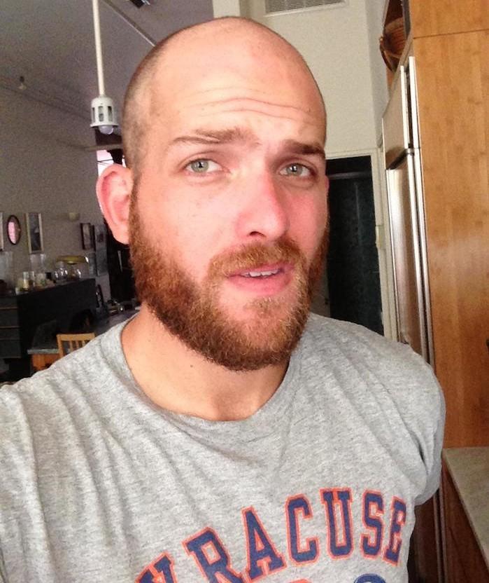 chute-de-cheveux-que-faire-barbe-chauve-calvitie-idee-style