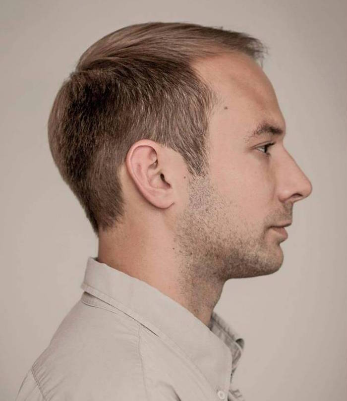 photo pour coupe de cheveux homme dégarni blond avec golfes et front dégarni par un début d'alopécie et comment cacher calvitie homme