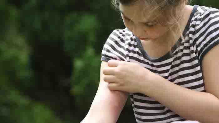 que faire contre les moustiques pour ne pas nous faire piquer quel produit utiliser