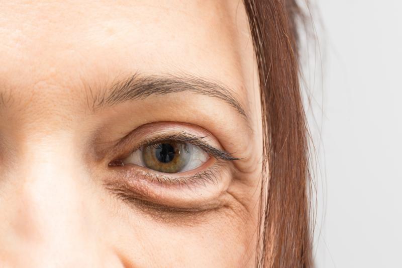 poche sous les yeux une femme qui a des cernes sous les yeux